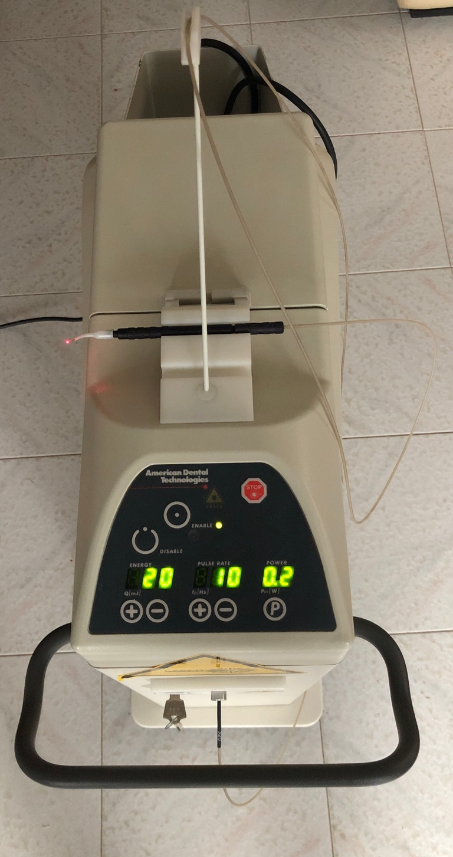 Il Laser Nd:yag ad alta potenza in odontoiatria:vantaggi e ...
